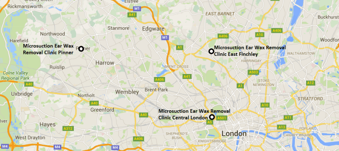 Microsuction in London